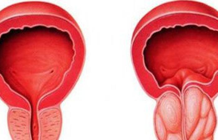 للرجل احذر..هرمونات نفخ العضلات والمنشطات الجنسية تصيبك بتضخم البروستاتا المبكر