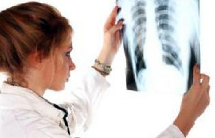 اتحاد الأطباء العرب ينظم دورة تدريبية لاستعراض الجديد فى علاج تشوهات العظام