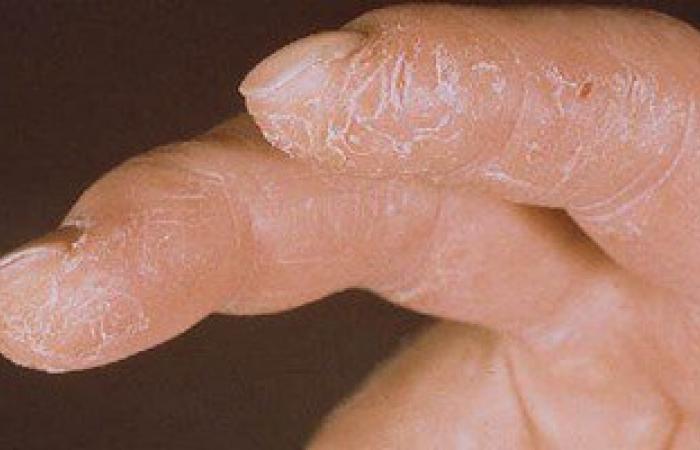 أخصائى جلدية: غسيل الصحون بمنظفات كيميائية يشكل خطورة صحية