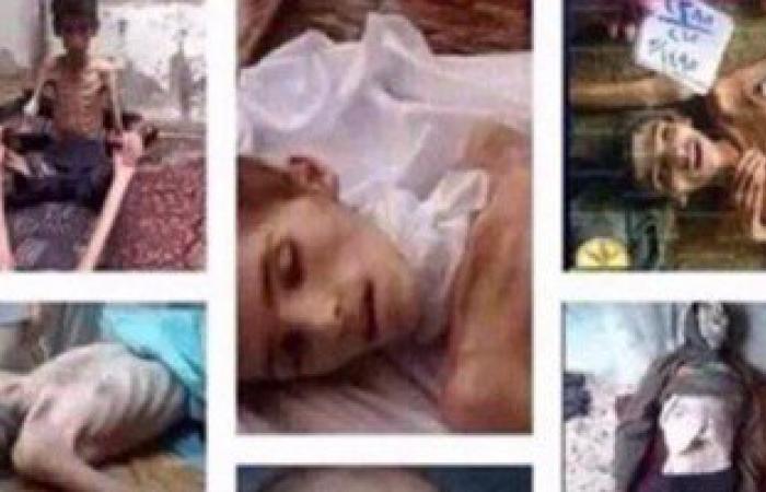 بالصور والفيديو.. أطفال مضايا بسوريا يعانون من الموت البطىء بسبب الجوع