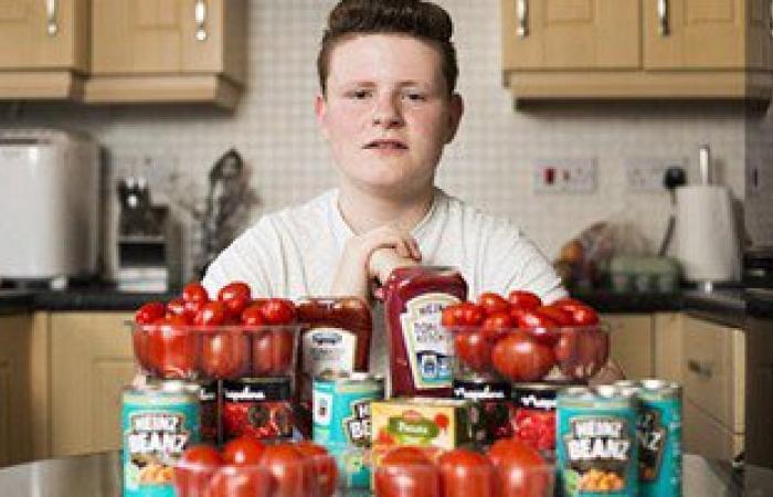 شاب إنجليزى يدمن الطماطم لإصابته باضطراب الطعام.. والسبب البازلاء