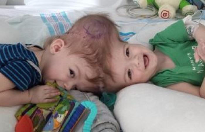بالصور.. جراحة نادرة لتوأم ملتصق من الرأس تحدث لحالة من بين 2.5 مليون مولود