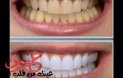 الوصفة المعجزة لتبييض الأسنان المصفرة من أول استعمال