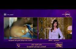 برنامج مساء dmc مع إيمان الحصري - حلقة السبت 16-12-2017 - ظاهرة التحرش الجنسي