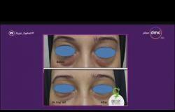 """السفيرة عزيزة - د/ إنجي سيف : التجاعيد التي توجد بجانب العيون يتم علاجها باستخدام """" البوتكس """""""