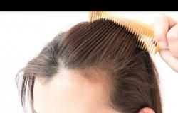 إذا كنتِ تعاني من فراغات في فروة الشعر .. تعرفي على الفحوصات اللازمة
