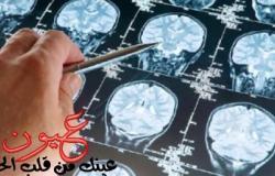دراسة علمية تحذر: الأشعة المقطعية تزيد خطر الإصابة بأورام المخ