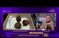 مساء dmc - أمين المجلس الاعلى للاثار | أحد جماجم تابوت الاسكندرية بها ثقب ناتج عن سهم حربي |