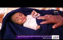 الأخبار - الأمم المتحدة تعلن حاجتها إلى 4 مليارات دولار لإغاثة 20 مليون يمني في 2019
