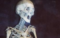 عثروا عليه هيكل عظمي.. إسدال الستار على قصة مصري مختفي من 15 سنة بإيطاليا