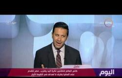 اليوم - علاء عبدالعاطي: هدفنا توفير وتحسين الحياة الآمنة لكبار السن والأطفال