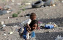 12% نسبة سوء التغذية بالاردن  و 3% من الأردنيات مصابات بنحافة زائدة