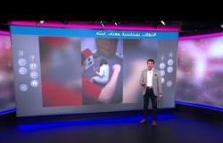 فيديو  أب سعودي يضرب ابنته في الشارع ويثير غضبا على منصات التواصل