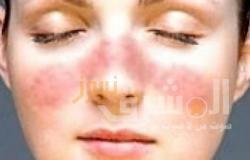 بثلاث مكونات طبيعية.. عمل ماسك تقشير الوجه