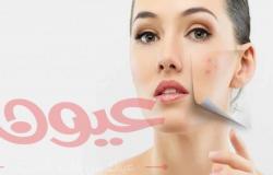 ماسكات طبيعية لإزالة البقع الدكنة من الوجه