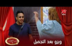 شوف نتيجة عمليات التجميل اللي عملتها ويزو في لبنان