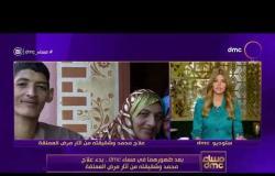 مساء dmc - بعد ضهورهما في مساء dmc.. بدء علاج محمد وشقيقته من أثار مرض العملقة