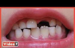 تساقط الأسنان.. صدمة جديدة لمتعافى كورونا