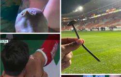 بالفيديو.. مسمار يتسبب بإصابة مروعة للاعب في الدوري المكسيكي