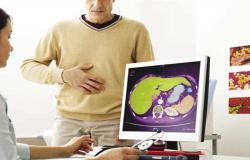 حسام موافي يحذر مريض الكبد من دخول غرفة العمليات