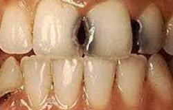 تسوس الأسنان والتهابات اللثة تهدد مرضى السكر