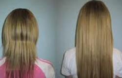 أخصائى أمراض جلدية: تمشيط الشعر بقوة يتلفه ويضر مسامه