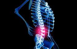 """""""البروسيلا""""يسبب الحمى الملطية والتهابات مزمنة بالعظام والعمود الفقرى"""