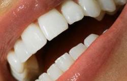 """بخطوات بسيطة.. احصل على """"ابتسامة النجوم"""" بأسنان أكثر بياضا"""