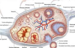 3 طرق لعلاج مرض تكيس المبايض