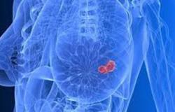 تعرفى على أهمية الكشف المبكر عن سرطان الثدى