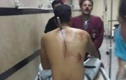 إصابة مواطن بطعنة فى الظهر على إثر خلافات عائلية بالدقهلية