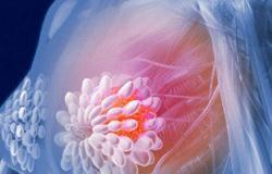 نصائح ذهبية للسيدات أثناء الخضوع لعلاج سرطان الثدى