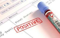 المؤتمر الدولى للإيدز: 2.5 مليون مصاب بالفيروس سنويًا